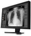 Carestream-radiology