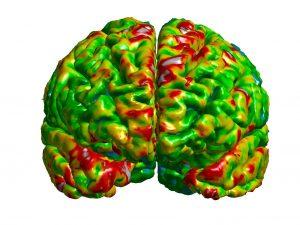 Image of the frontal cortex depicting quantitative radiology