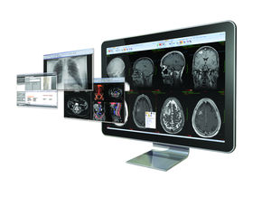 Radiology structured report